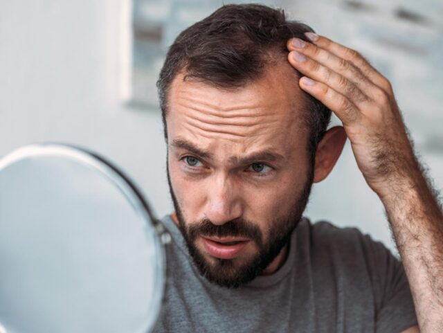 Hair Loss Problems: What Guys Can Do to Improve Their Appearance - 2020  Guide - scholarlyoa.com